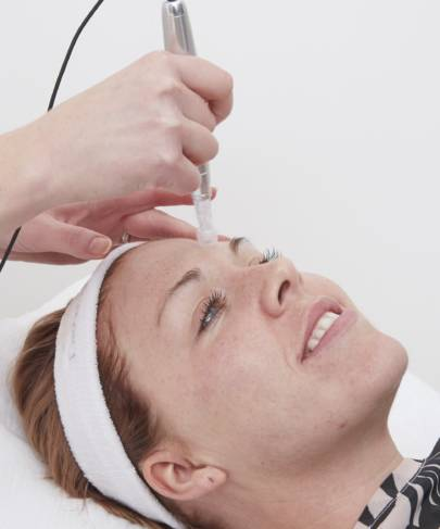 About Microneedling