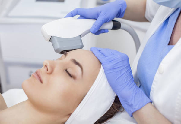 HIFU Face and Neck Lift